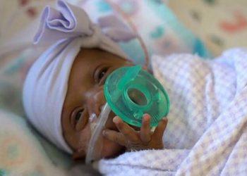 Самая маленькая новорожденная в мире была размером с яблоко (7фото)
