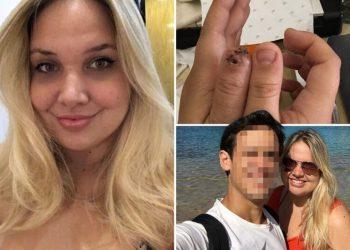 Парень откусил своей подруге палец из-за ночного кошмара (8фото)