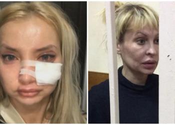 Горе-косметолог изуродовала почти два десятка человек и села в тюрьму (4фото)